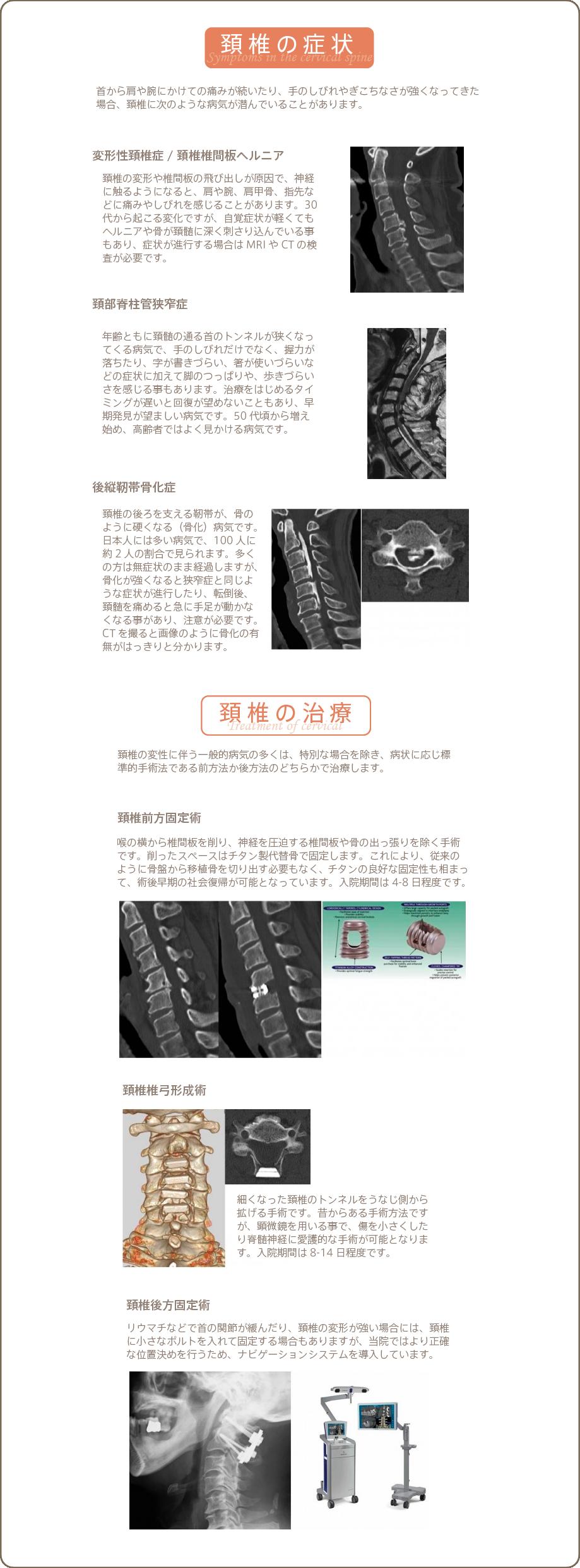 頚椎の症状