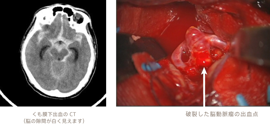 解離 性 脳 動脈 瘤 破裂 くも膜 下 出血