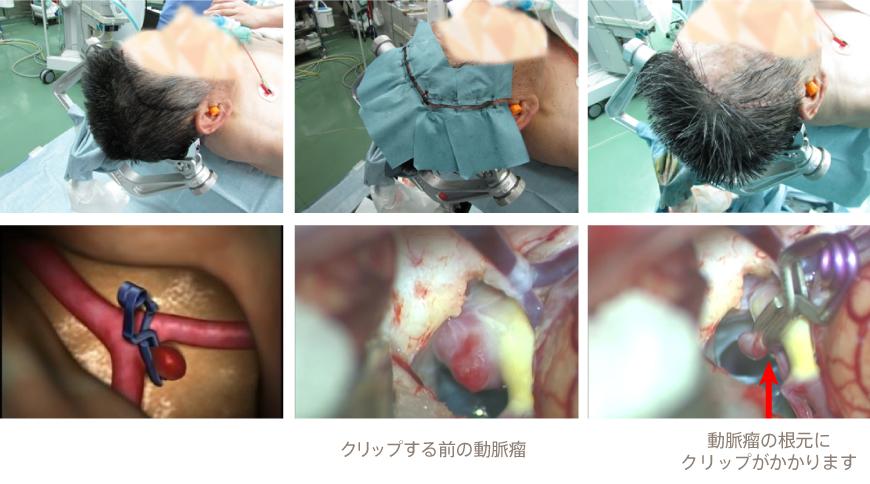 脳 動脈 瘤 手術 リスク