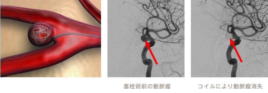 消える 瘤 脳 動脈